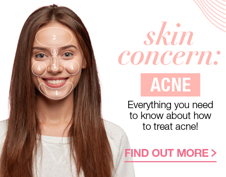 SKIN CONCERN: ACNE EVERYTHING YOU NEED TO KNOW ABOUT HOW TO TREAT ACNE